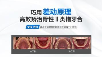 【罗俊 • 精品课】巧用差动原理高效矫治骨性Ⅱ类错牙合