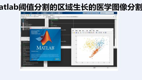 matlab阈值分割的区域生长的医学图像分割新录