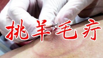 挑羊毛疔|截根疗法 挑刺疗法 中医针挑疗法真人演示操作