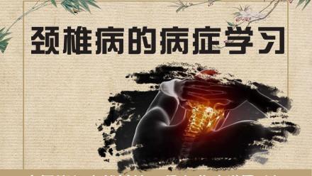 中医针灸推拿--颈椎病