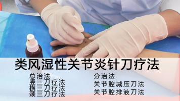 疑难病例之类风湿性关节炎针刀治疗