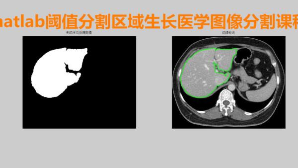 大仙matlab 基于阈值分割的区域生长的医学图像分割